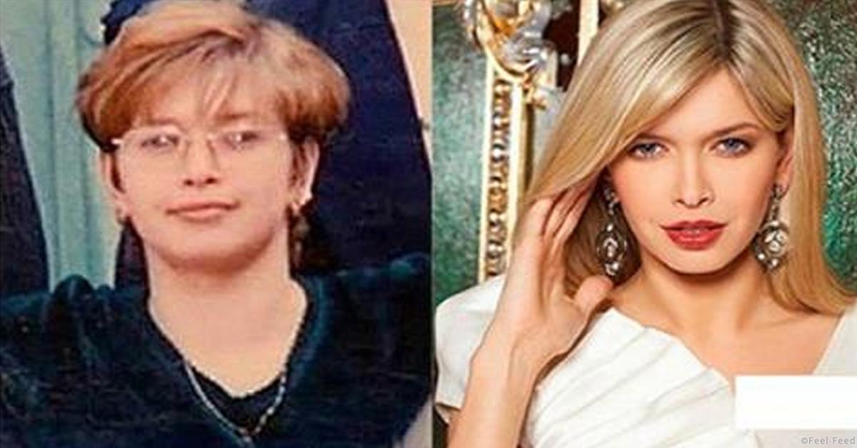 вера брежнева фото до и после похудения фото