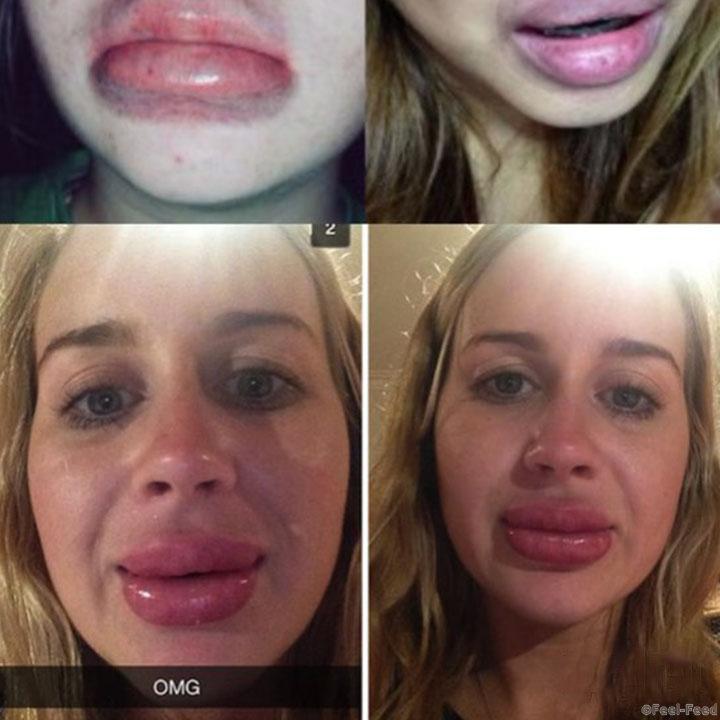 Как я увеличила губы сама