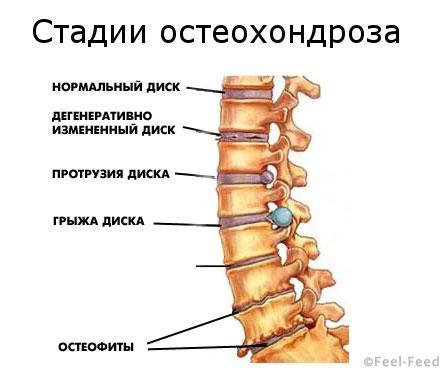osteohondroz-2-st