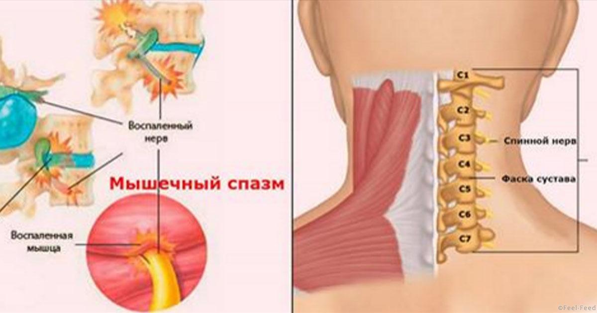 Спазм мышц в шейном отделе