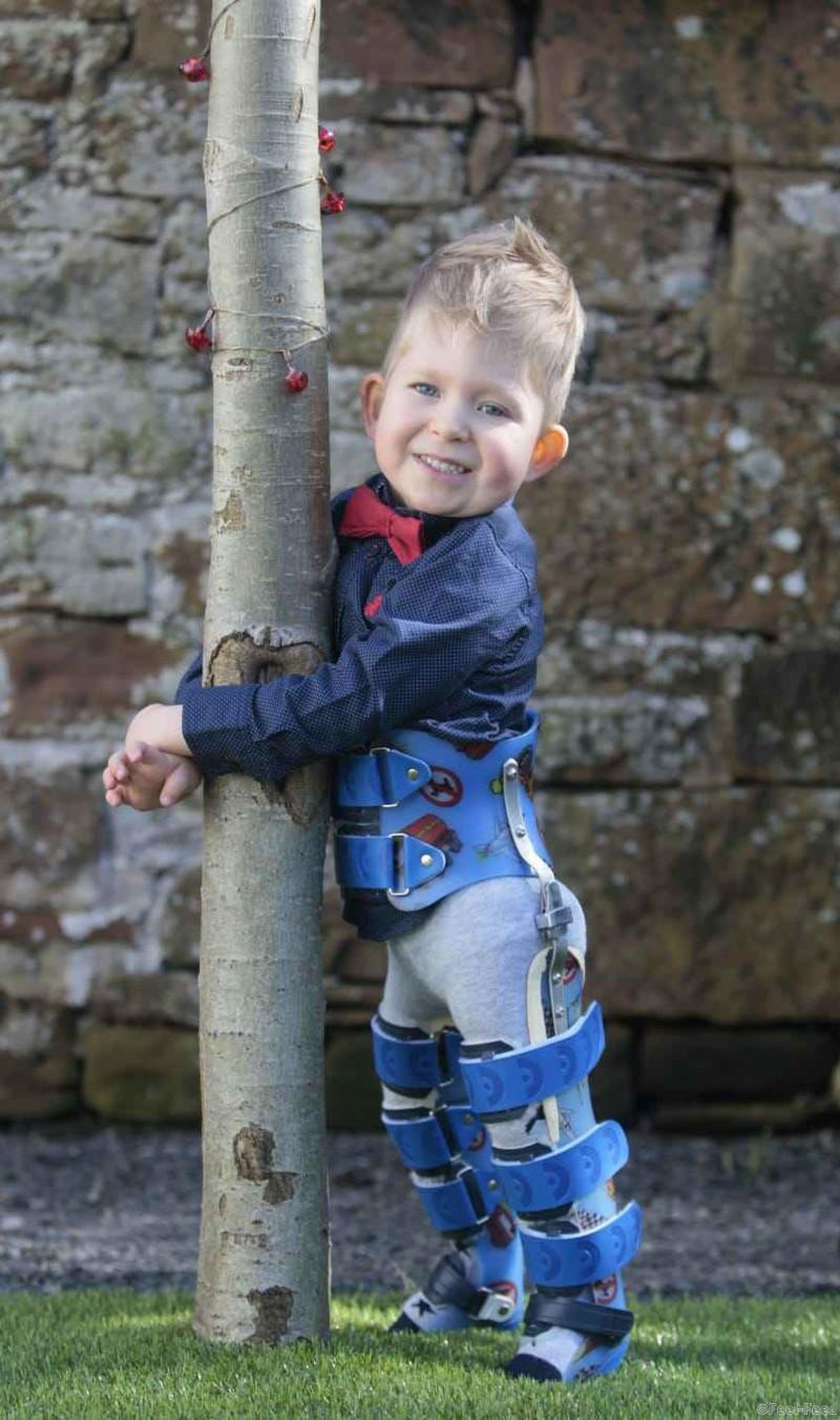 PIC FROM HELEN BARRINGTON / CATERS NEWS - (PICTURED: Noah Wall aged 3 - Noah was a miracle baby who defied odds and has now won a modelling contract) - A miracle baby who defied the odds to reach his third birthday has now won a modelling contract and could end up in adverts, TV series or even films. Noah Wall, 3, developed hydrocephalus when he was born – leading to a build-up of fluid in his skill that destroyed all but 2% of his brain. His mum Shelly, 43, discovered three months into her pregnancy that baby Noah had a catalogue of health problems including spina bifida, rare chromosome abnormalities and hydrocephalus. SEE CATERS COPY.