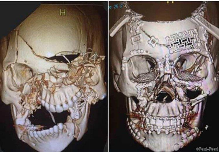 (Picture: Imgur) Brutal before and after CT scan pictures of skull after bone repair job http://imgur.com/a/1nrT0