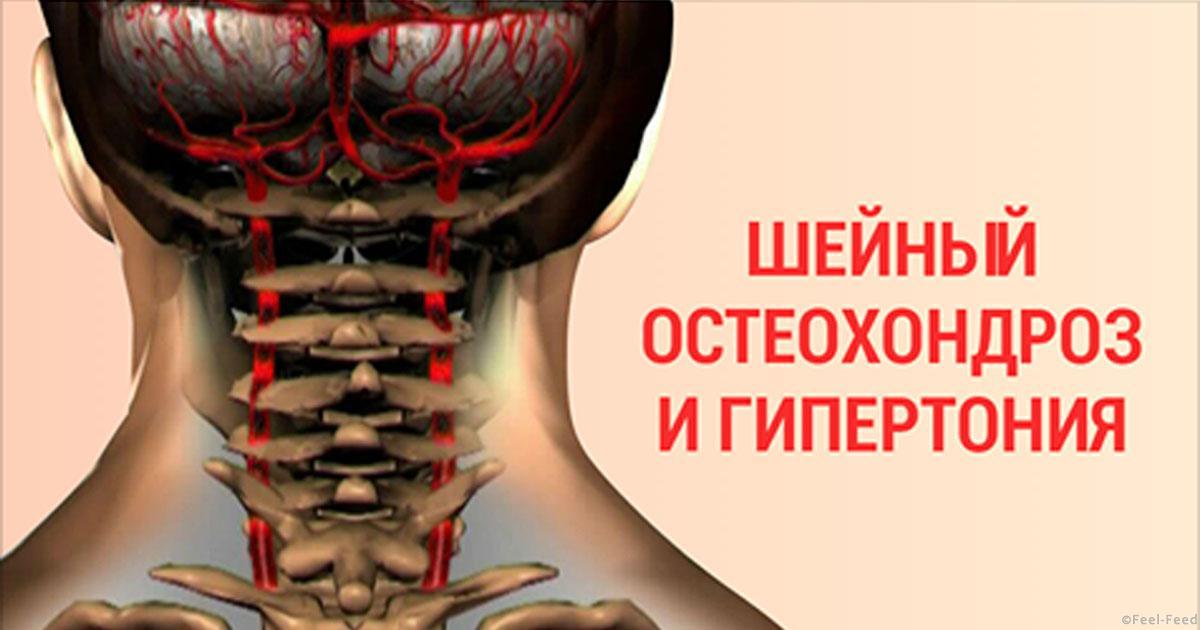 чем лучше лечить шейный остеохондроз отзывы связь для